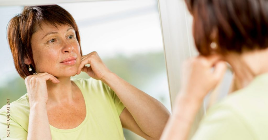 Woman pondering if it's time for her to get a facelift